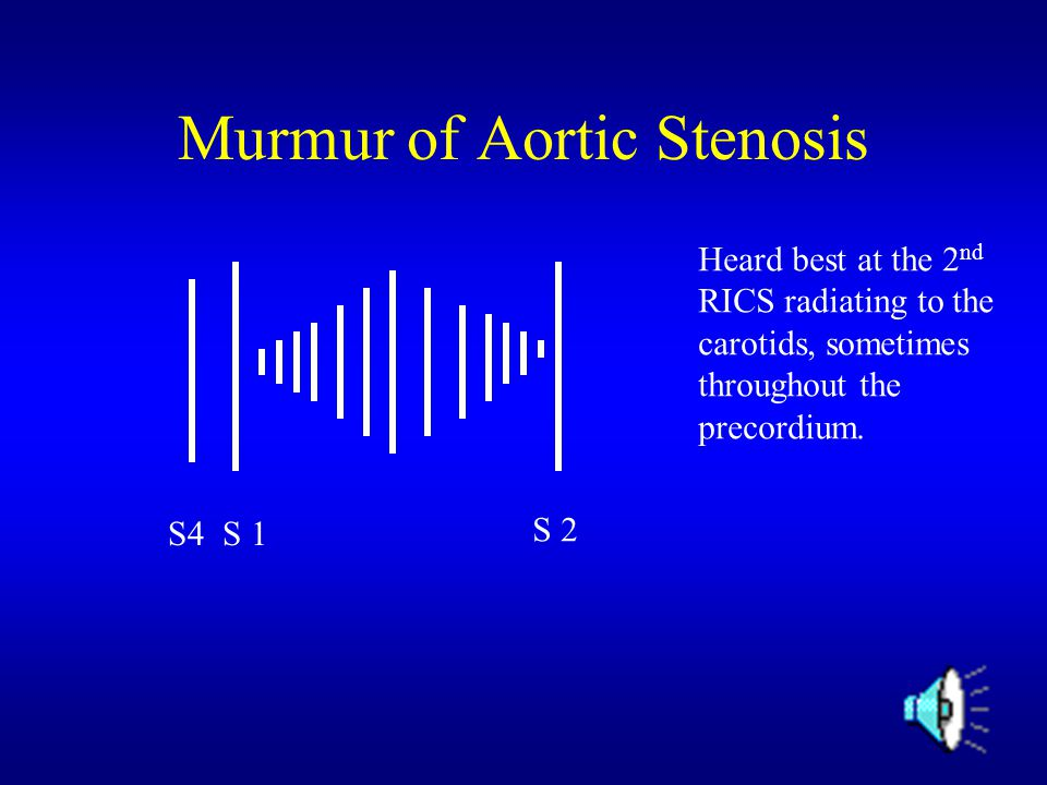Murmur of Aortic Stenosis S4 S 1 S 2 Heard best at the 2 nd RICS radiating to the carotids, sometimes throughout the precordium.
