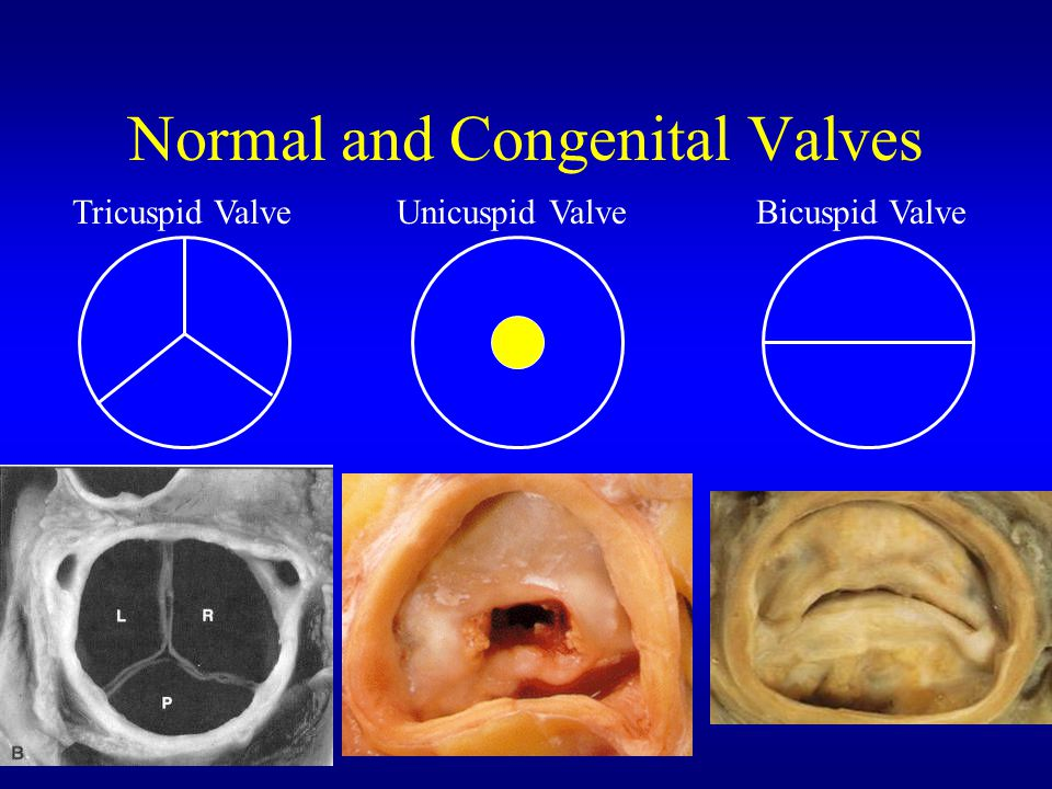 Normal and Congenital Valves Tricuspid ValveUnicuspid ValveBicuspid Valve