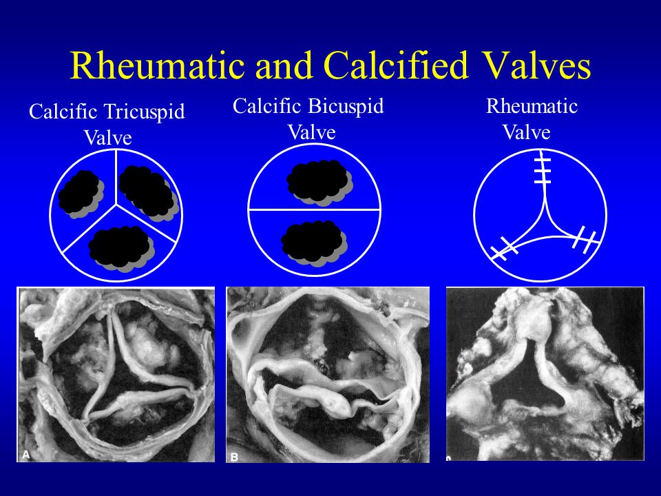 Rheumatic and Calcified Valves Calcific Tricuspid Valve Calcific Bicuspid Valve Rheumatic Valve
