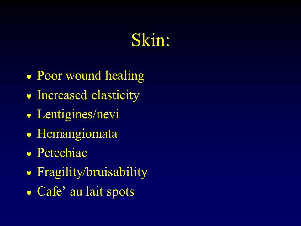 Skin: Poor wound healing Increased elasticity Lentigines/nevi Hemangiomata Petechiae Fragility/bruisability Cafe' au lait spots