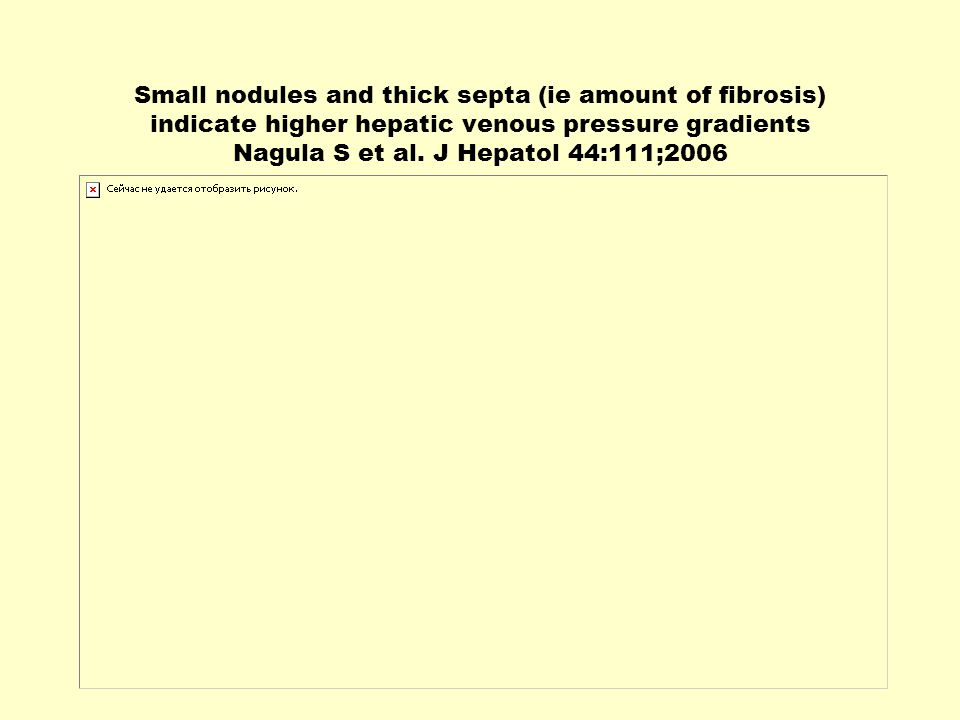 Small nodules and thick septa (ie amount of fibrosis) indicate higher hepatic venous pressure gradients Nagula S et al.