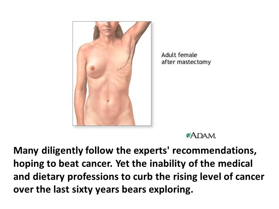 Radiation is known to induce cancer.