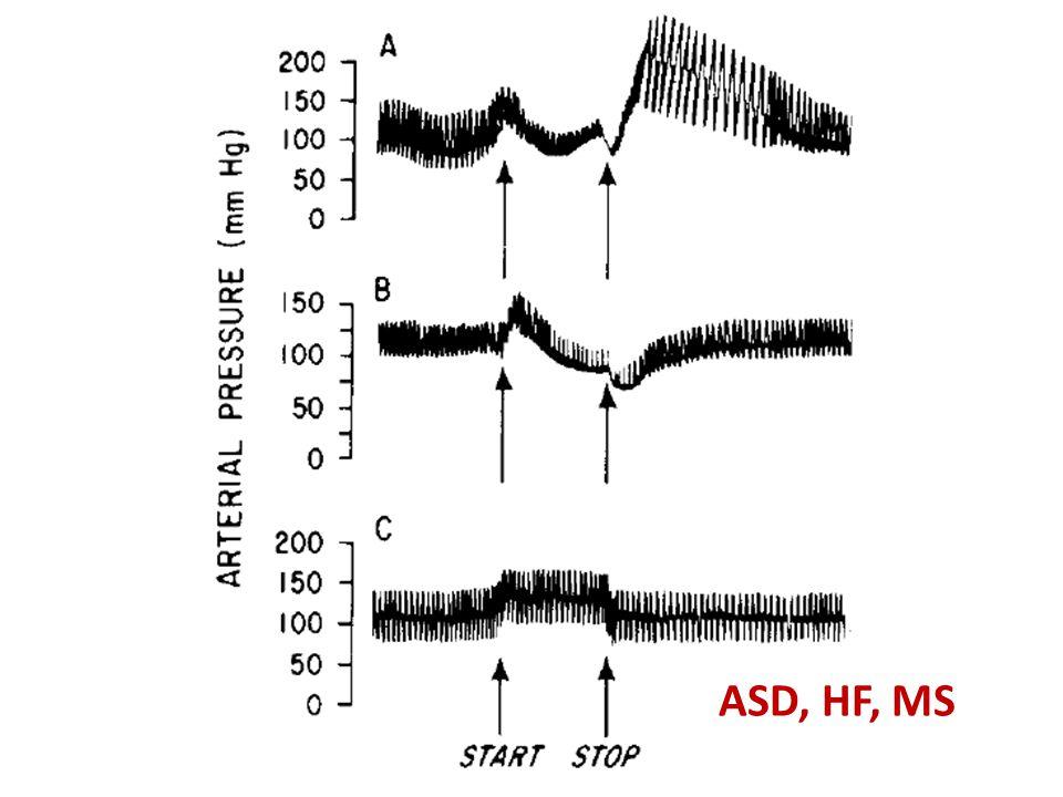 ASD, HF, MS