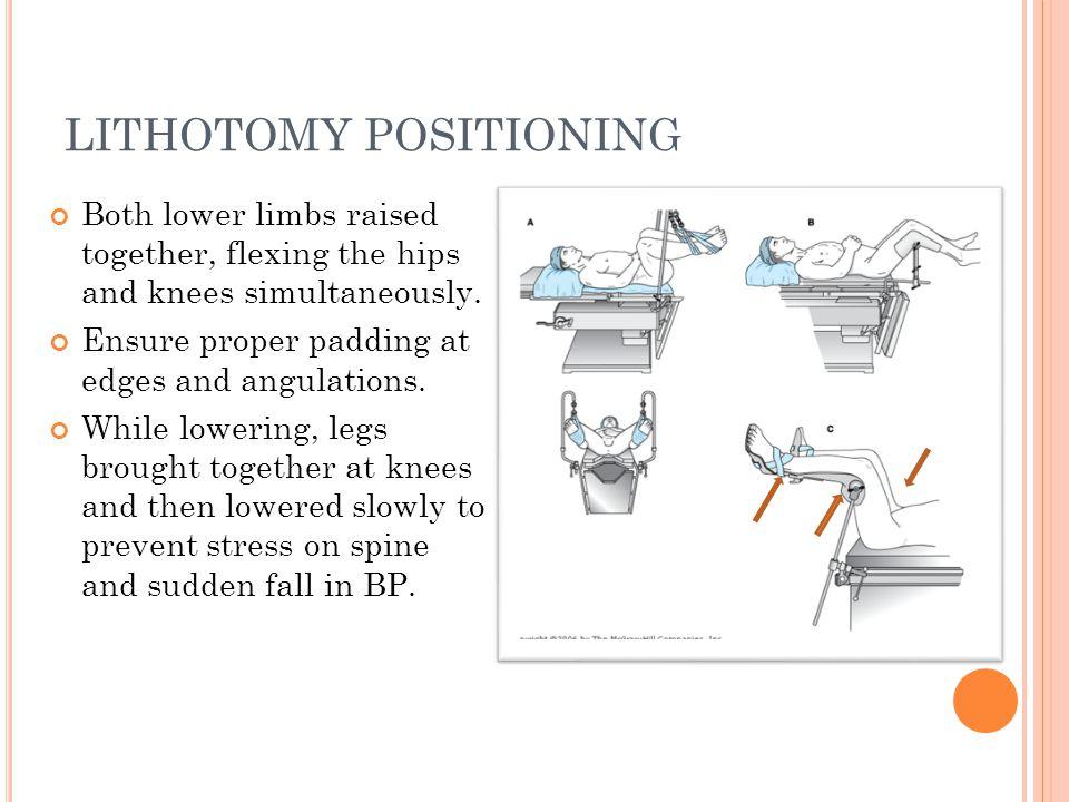 Low Lithotomy Position Lithotomy Positioning Both