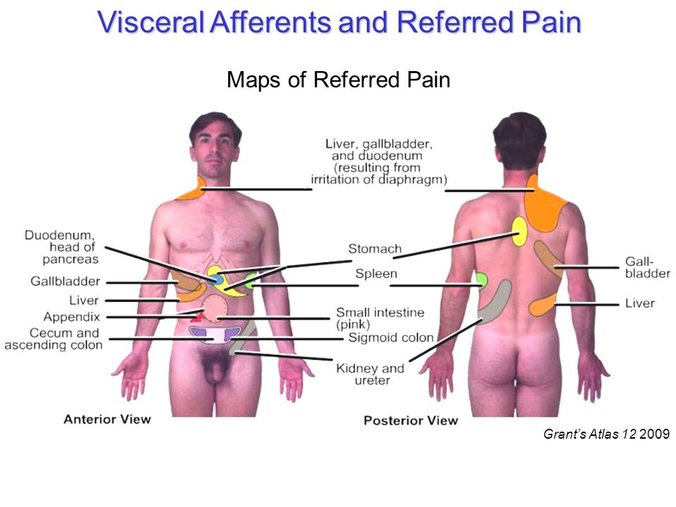 Grant's Atlas 12 2009 Visceral Afferents and Referred Pain Maps of Referred Pain