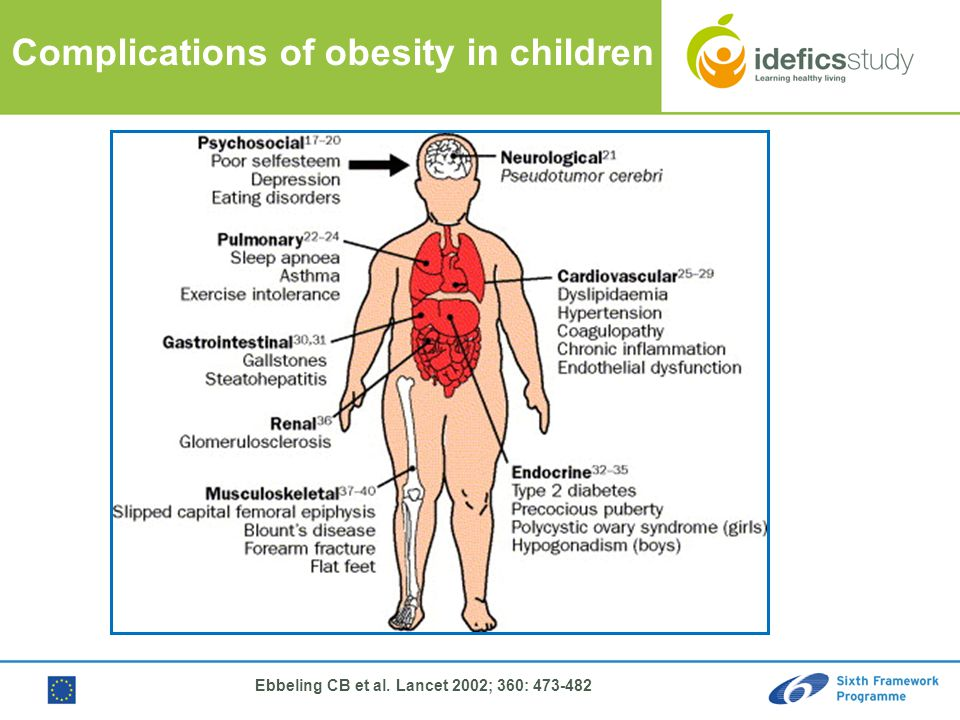 Luis A. More no Azna r lmore no@ uniza r.es GEN UD Rese arch Grou p Univ ersid ad de Zara goza Complications of obesity in children Ebbeling CB et al.