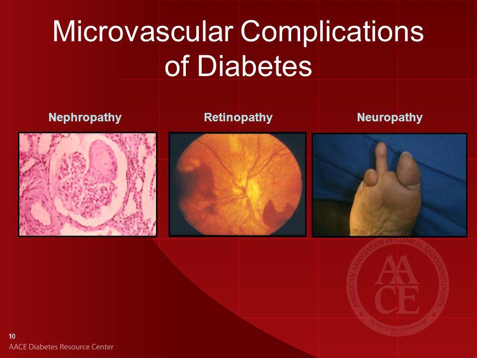 Microvascular Complications of Diabetes 10 NephropathyRetinopathyNeuropathy