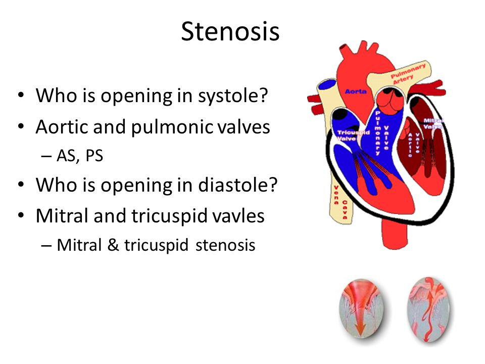 Stenosis Who is opening in systole.Aortic and pulmonic valves – AS, PS Who is opening in diastole.