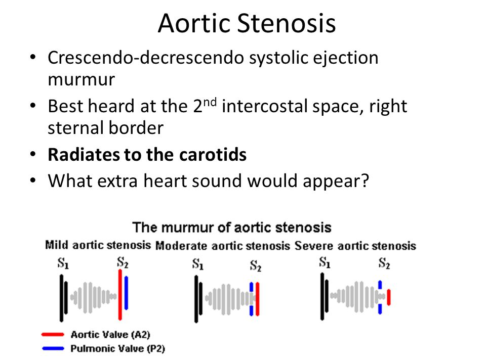 Aortic Stenosis Crescendo-decrescendo systolic ejection murmur Best heard at the 2 nd intercostal space, right sternal border Radiates to the carotids