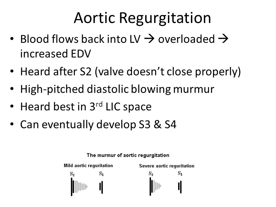 Aortic Regurgitation Blood flows back into LV  overloaded  increased EDV Heard after S2 (valve doesn't close properly) High-pitched diastolic blowin