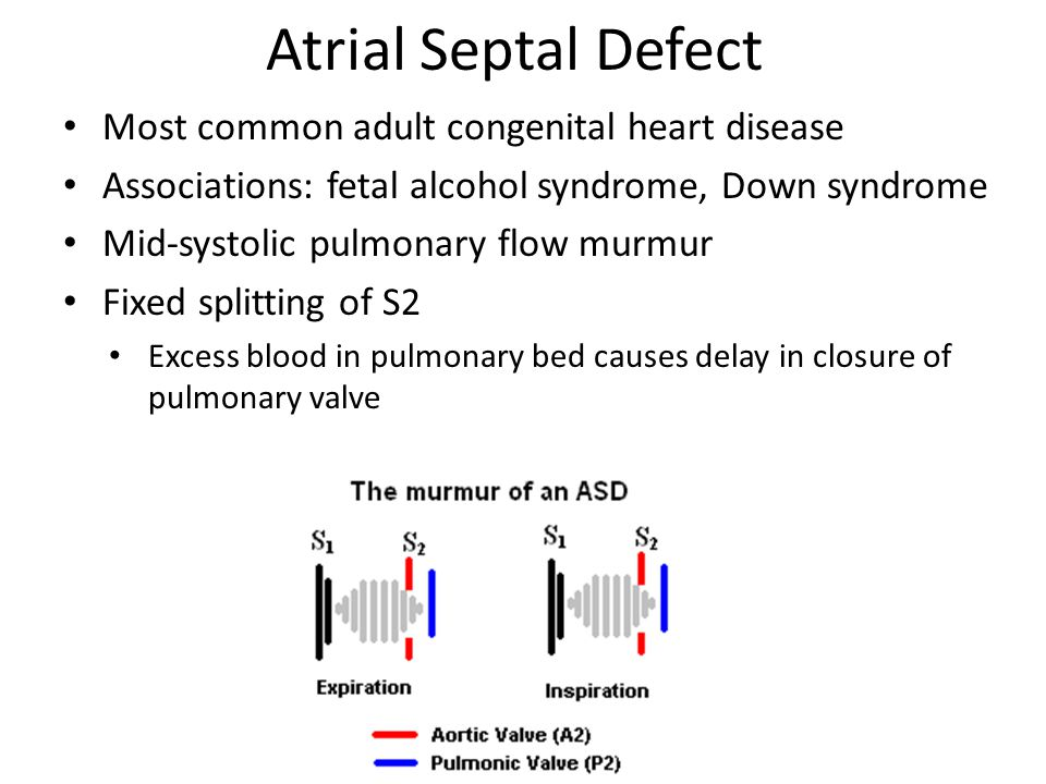 Atrial Septal Defect Most common adult congenital heart disease Associations: fetal alcohol syndrome, Down syndrome Mid-systolic pulmonary flow murmur Fixed splitting of S2 Excess blood in pulmonary bed causes delay in closure of pulmonary valve