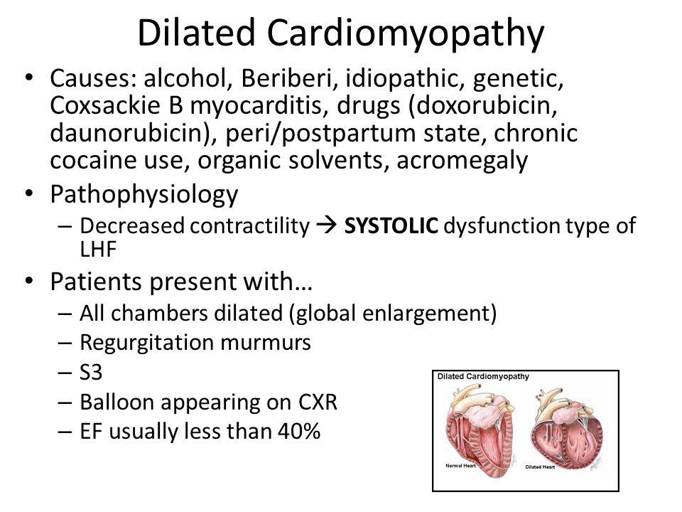 Dilated Cardiomyopathy Causes: alcohol, Beriberi, idiopathic, genetic, Coxsackie B myocarditis, drugs (doxorubicin, daunorubicin), peri/postpartum state, chronic cocaine use, organic solvents, acromegaly Pathophysiology – Decreased contractility  SYSTOLIC dysfunction type of LHF Patients present with… – All chambers dilated (global enlargement) – Regurgitation murmurs – S3 – Balloon appearing on CXR – EF usually less than 40%