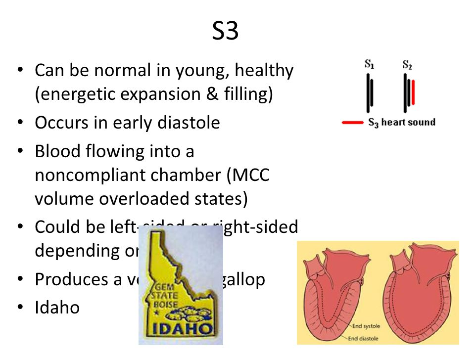 S3 Can be normal in young, healthy (energetic expansion & filling) Occurs in early diastole Blood flowing into a noncompliant chamber (MCC volume over