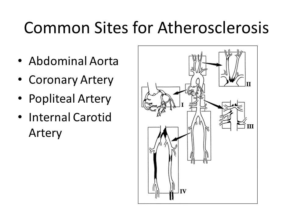 Common Sites for Atherosclerosis Abdominal Aorta Coronary Artery Popliteal Artery Internal Carotid Artery