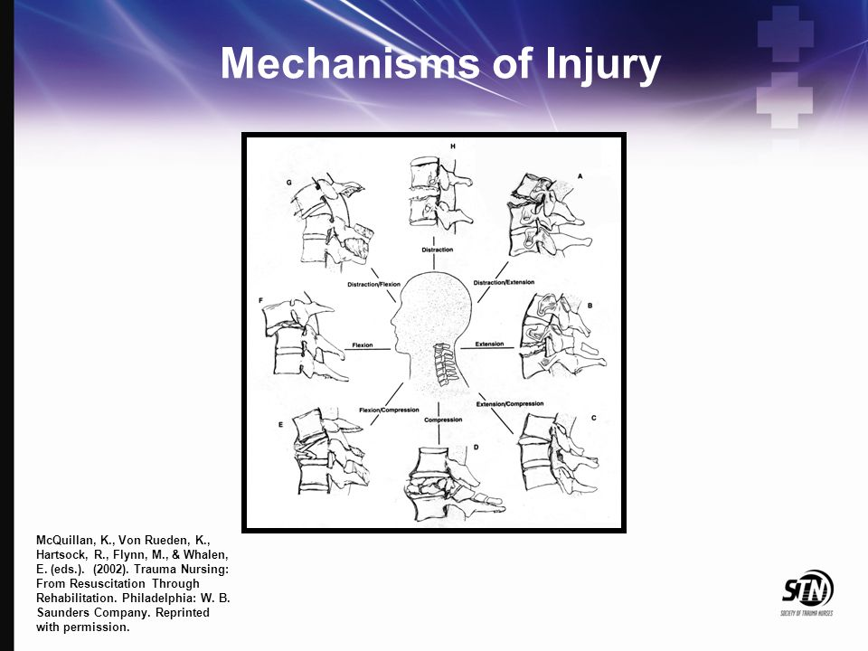 Mechanisms of Injury McQuillan, K., Von Rueden, K., Hartsock, R., Flynn, M., & Whalen, E. (eds.). (2002). Trauma Nursing: From Resuscitation Through R