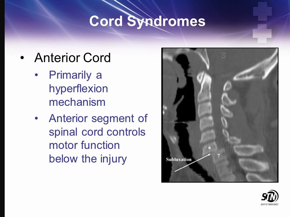 Cord Syndromes Anterior Cord Primarily a hyperflexion mechanism Anterior segment of spinal cord controls motor function below the injury