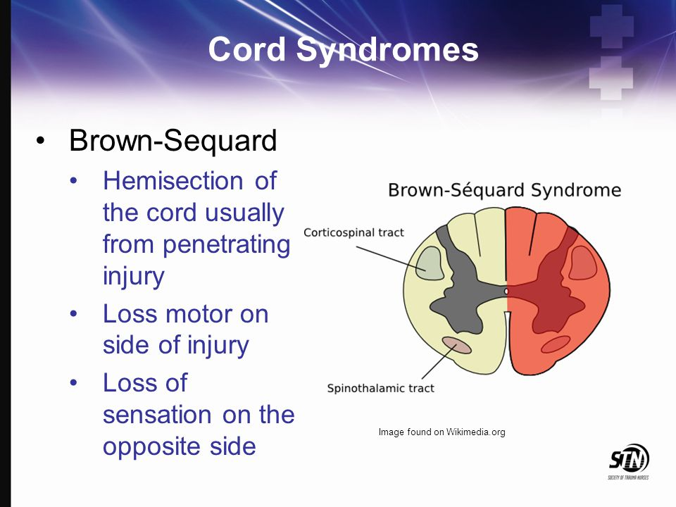 Cord Syndromes Brown-Sequard Hemisection of the cord usually from penetrating injury Loss motor on side of injury Loss of sensation on the opposite si