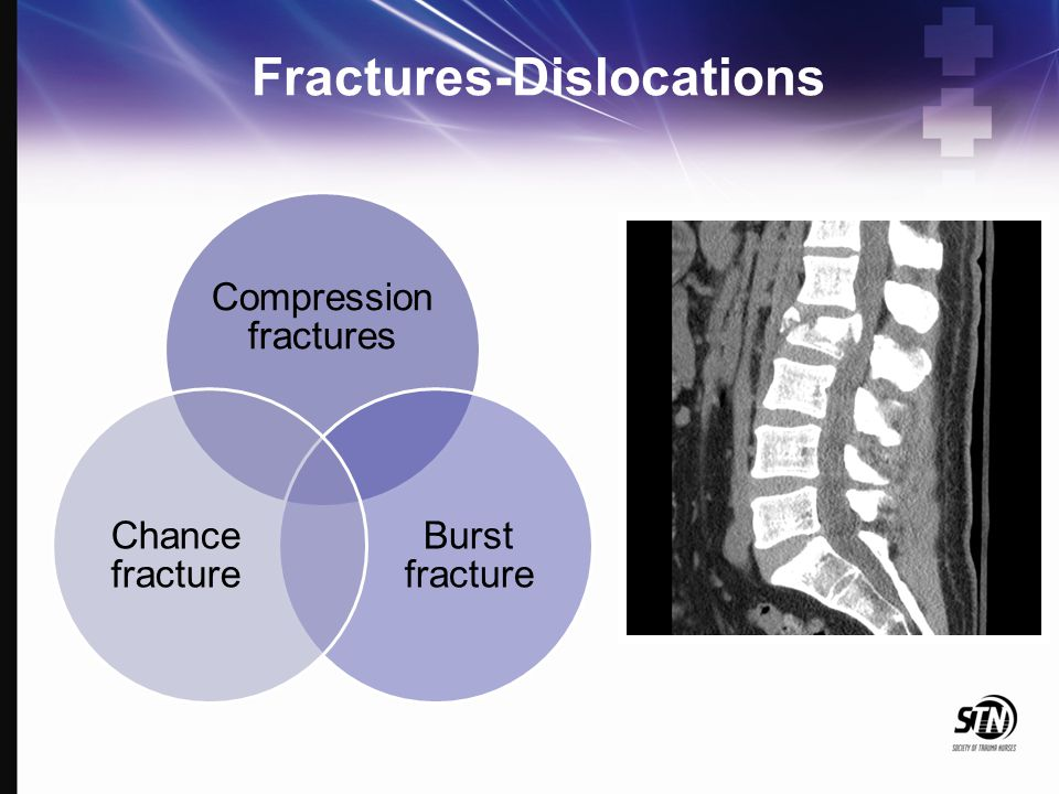 Fractures-Dislocations Compression fractures Burst fracture Chance fracture
