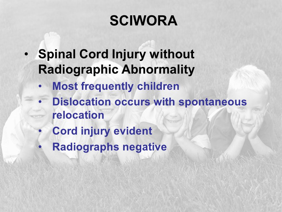 SCIWORA Spinal Cord Injury without Radiographic Abnormality Most frequently children Dislocation occurs with spontaneous relocation Cord injury eviden