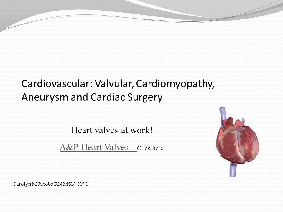 Cardiovascular: Valvular, Cardiomyopathy, Aneurysm and Cardiac Surgery Heart valves at work! A&P Heart Valves- A&P Heart Valves- Click here Carolyn M
