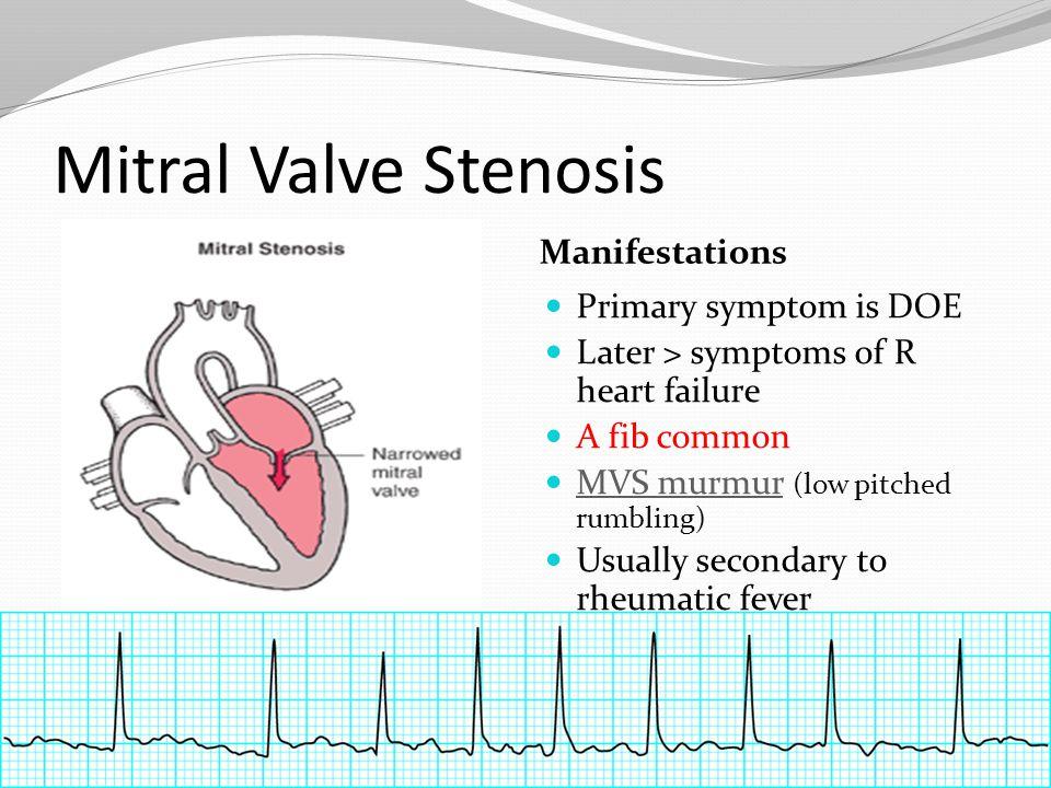 Mitral Valve Stenosis Manifestations Primary symptom is DOE Later > symptoms of R heart failure A fib common MVS murmur (low pitched rumbling) MVS mur