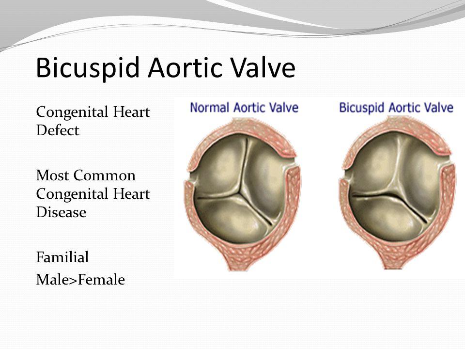 Bicuspid Aortic Valve Congenital Heart Defect Most Common Congenital Heart Disease Familial Male>Female