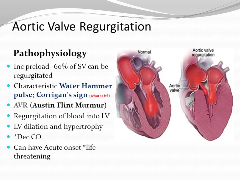 Aortic Valve Regurgitation Pathophysiology Inc preload- 60% of SV can be regurgitated Characteristic Water Hammer pulse; Corrigan's sign (what is it?)