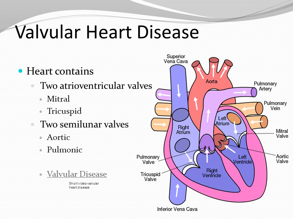 Focus on preventing Exacerbations of heart failure Acute pulmonary edema Thromboembolism Recurrent endocarditis and recurrent rheumatic fever *Treatment depends on valve involved and severity of disease.