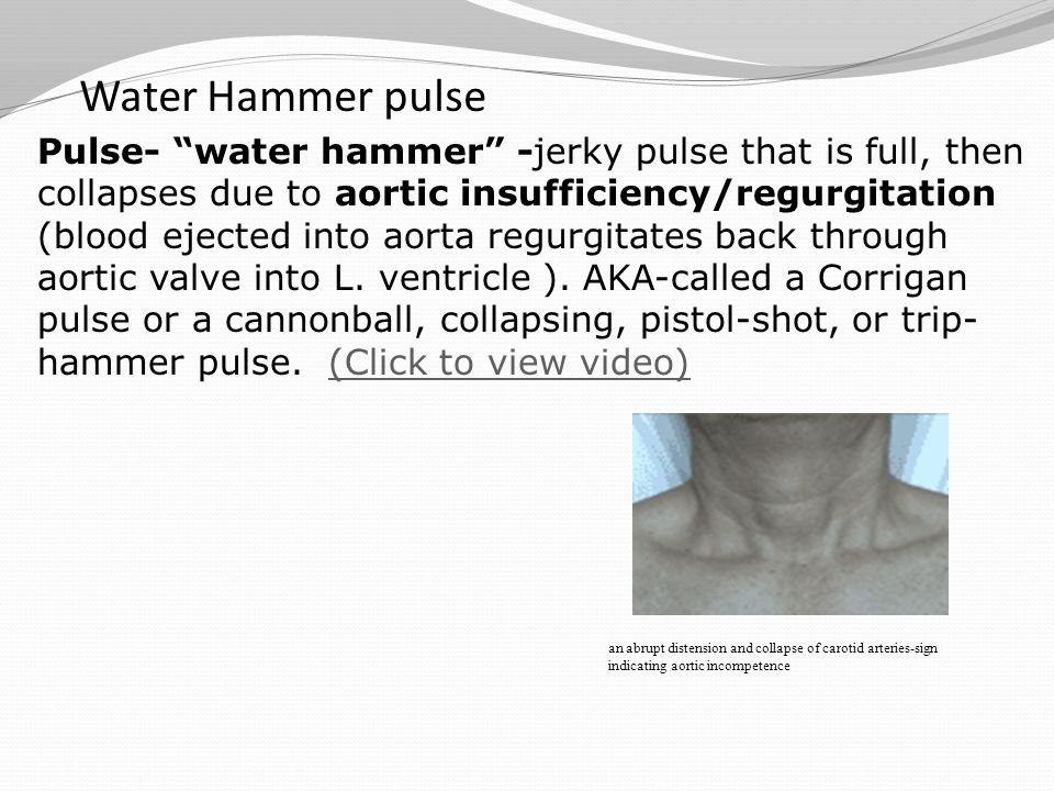 """Water Hammer pulse Pulse- """"water hammer"""" -jerky pulse that is full, then collapses due to aortic insufficiency/regurgitation (blood ejected into aorta"""