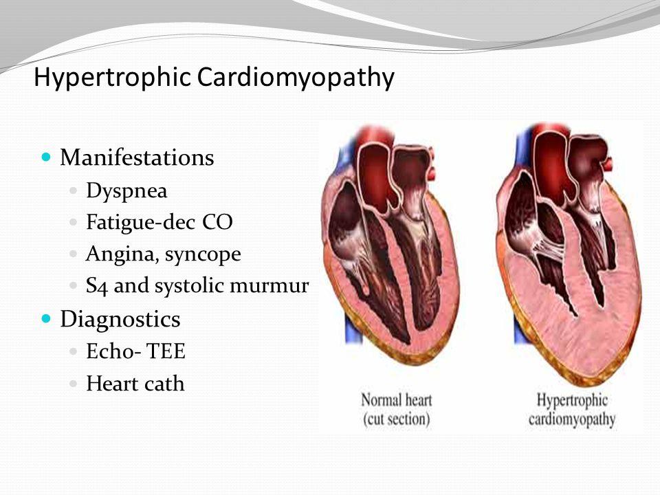 Hypertrophic Cardiomyopathy Manifestations Dyspnea Fatigue-dec CO Angina, syncope S4 and systolic murmur Diagnostics Echo- TEE Heart cath