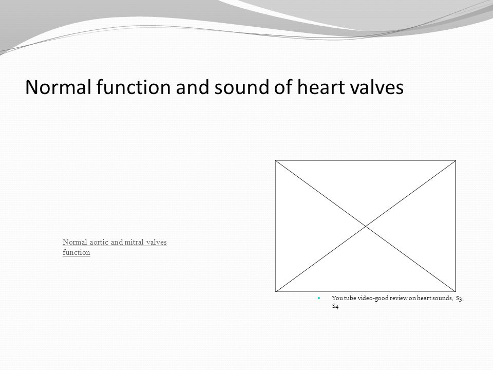 Normal function and sound of heart valves You tube video-good review on heart sounds, S3, S4 Normal aortic and mitral valves function