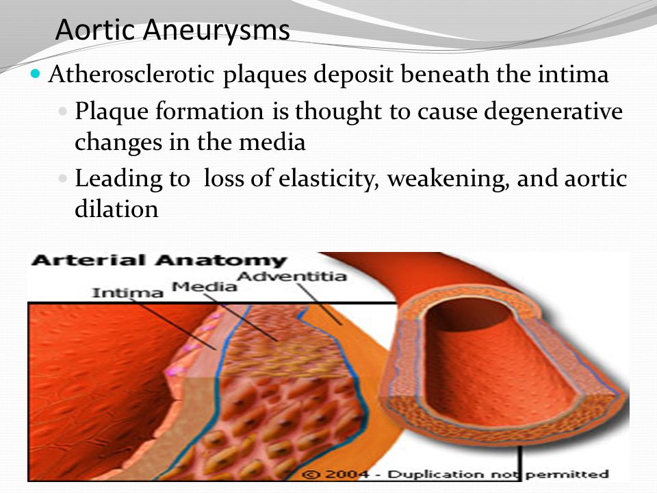 Aortic Aneurysms Atherosclerotic plaques deposit beneath the intima Plaque formation is thought to cause degenerative changes in the media Leading to