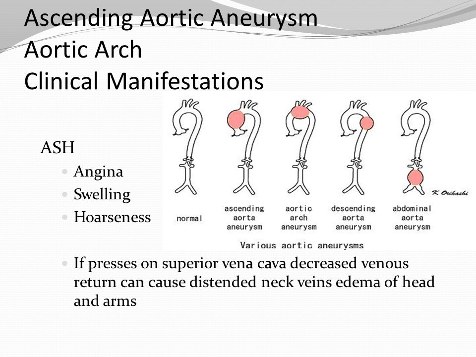 Ascending Aortic Aneurysm Aortic Arch Clinical Manifestations ASH Angina Swelling Hoarseness If presses on superior vena cava decreased venous return
