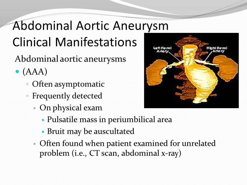 Abdominal Aortic Aneurysm Clinical Manifestations Abdominal aortic aneurysms (AAA) Often asymptomatic Frequently detected On physical exam Pulsatile m