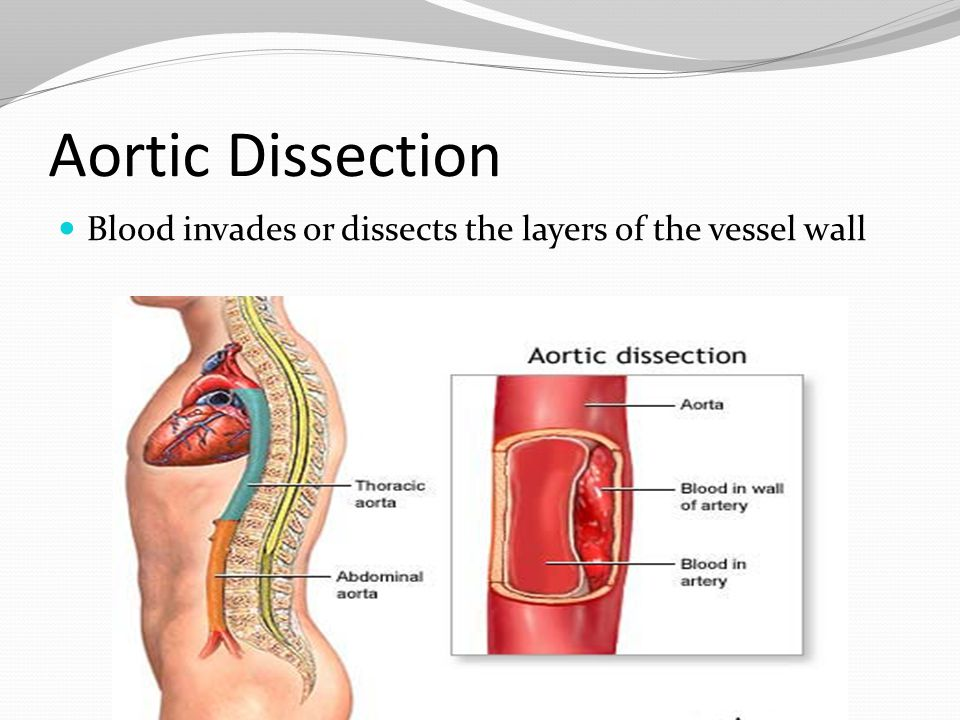 Aortic Dissection Blood invades or dissects the layers of the vessel wall