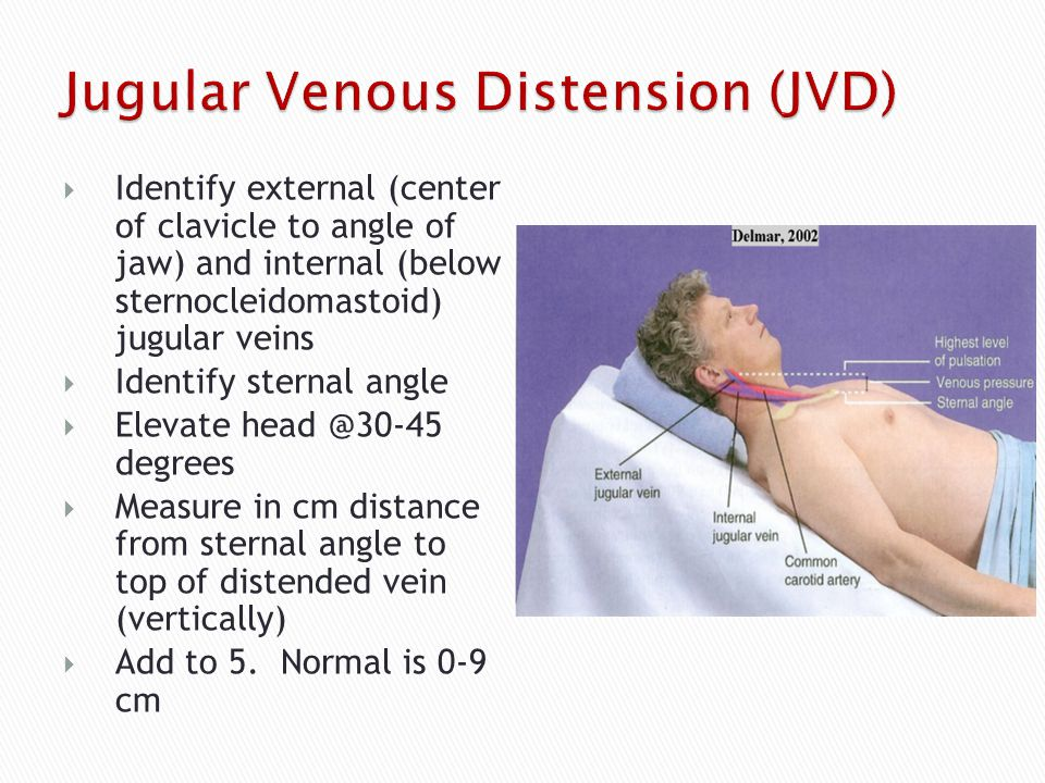 Jugular Venous Pressure (Distension)
