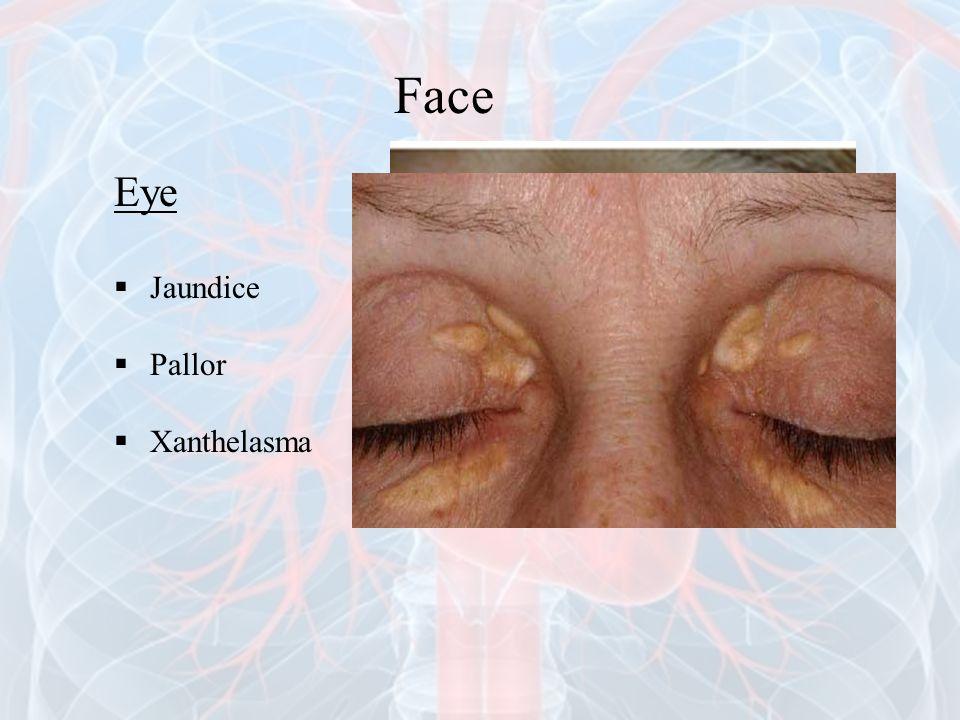 Face Eye  Jaundice  Pallor  Xanthelasma