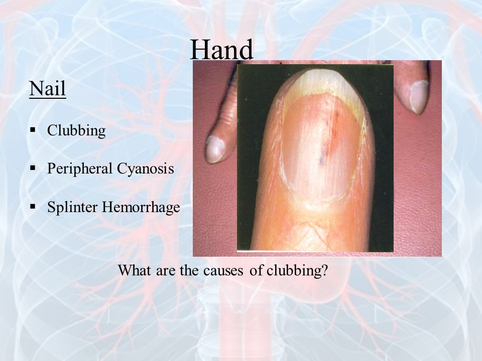 Nail  Clubbing  Peripheral Cyanosis  Splinter Hemorrhage What are the causes of clubbing? Hand