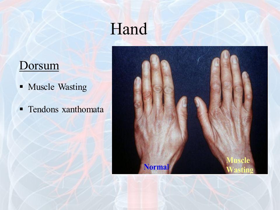 Dorsum  Muscle Wasting  Tendons xanthomata Hand