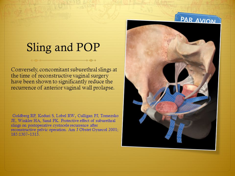 Sling and POP Conversely, concomitant suburethral slings at the time of reconstructive vaginal surgery have been shown to significantly reduce the rec