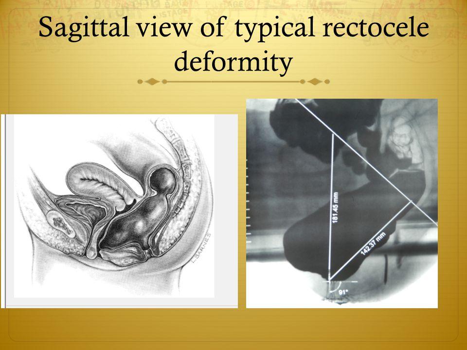 Sagittal view of typical rectocele deformity