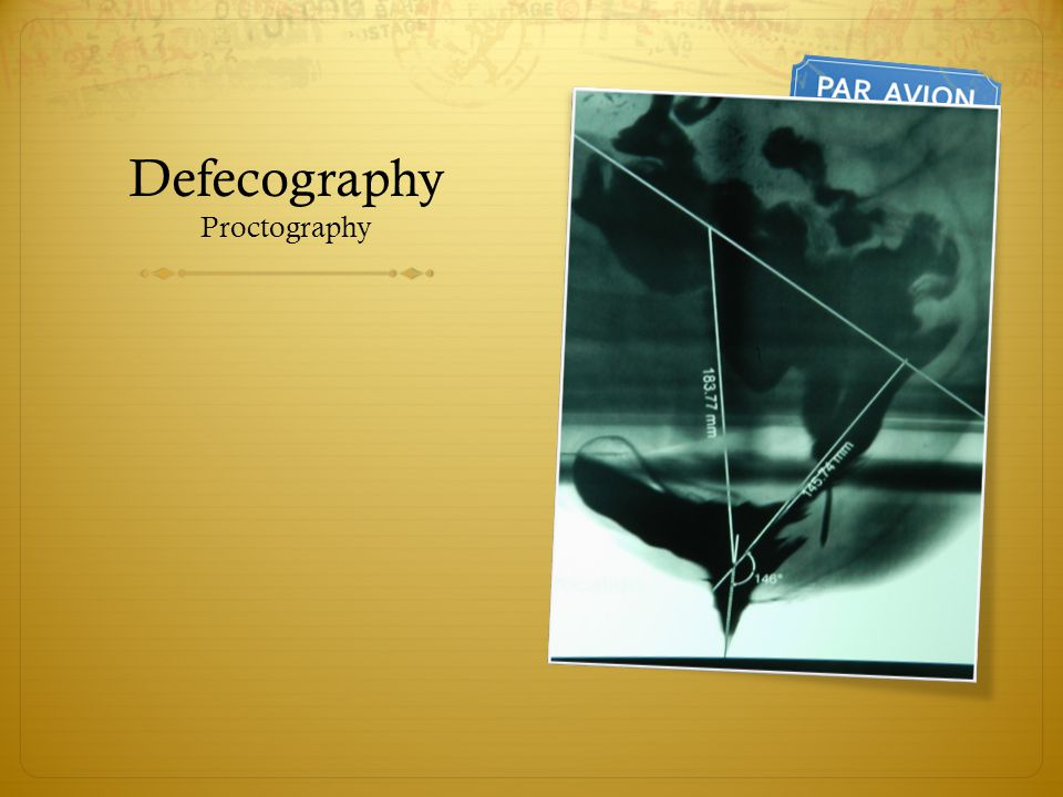 Defecography Proctography