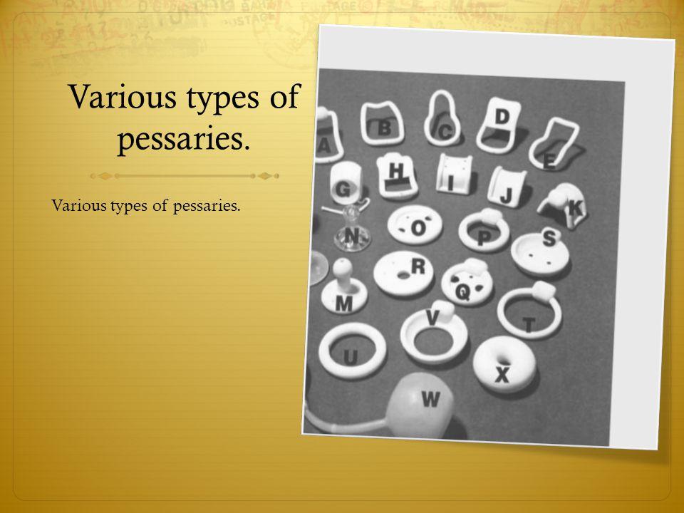 Various types of pessaries.