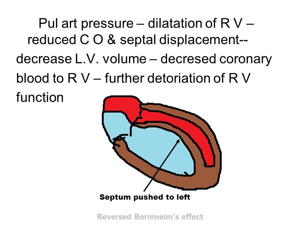 Pul art pressure – dilatation of R V – reduced C O & septal displacement-- decrease L.V. volume – decresed coronary blood to R V – further detoriation