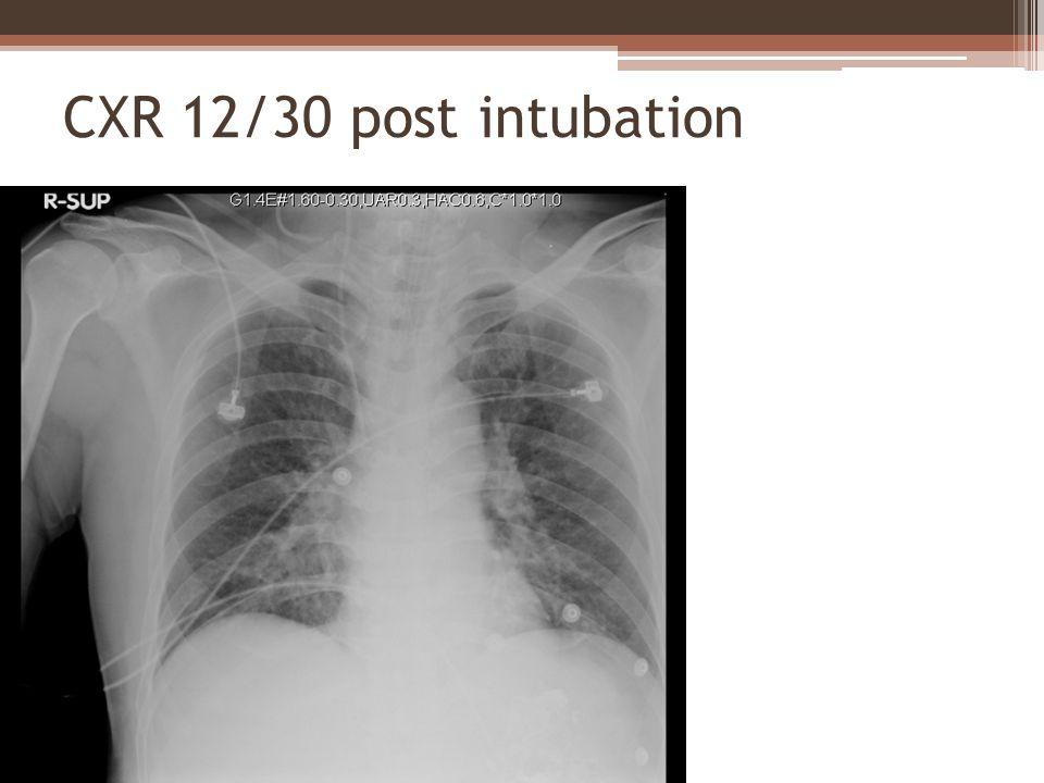 CXR 12/30 post intubation
