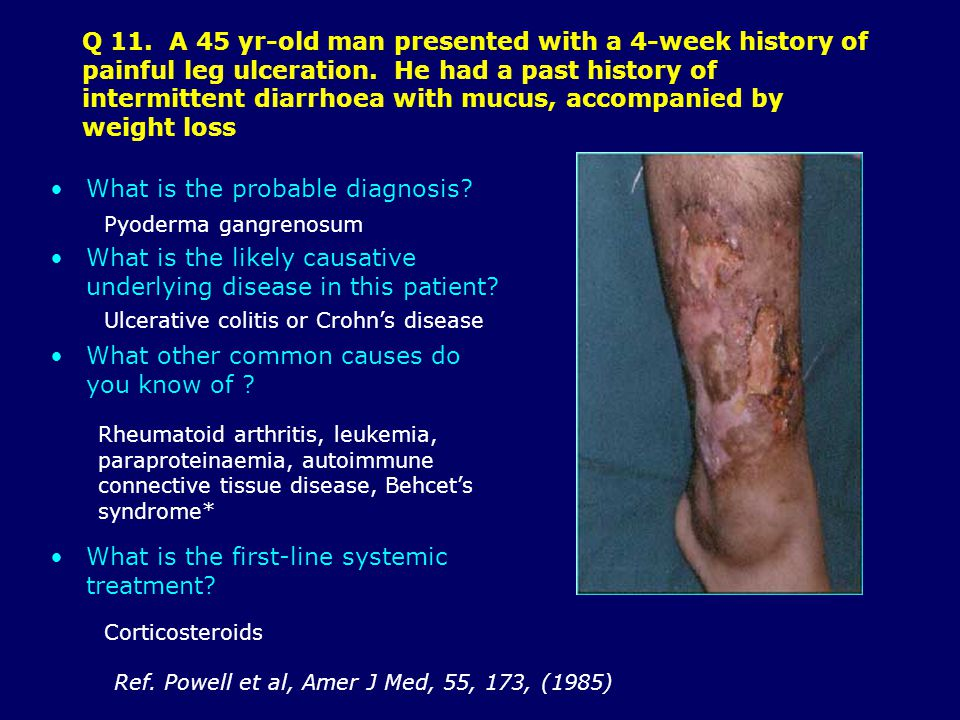 Q 11.A 45 yr-old man presented with a 4-week history of painful leg ulceration.