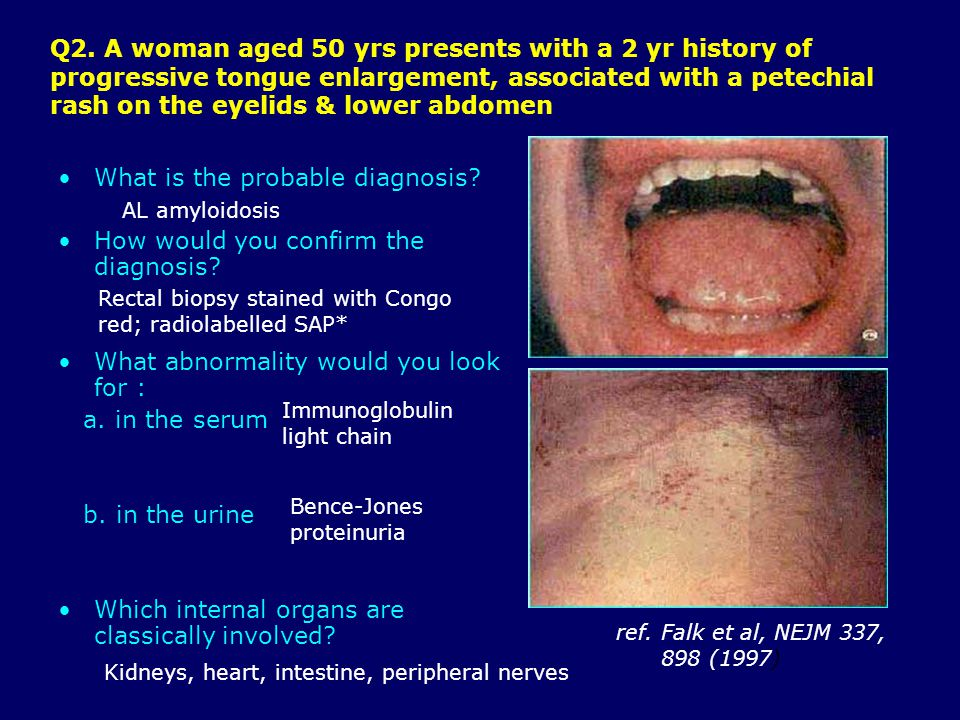 Q2. A woman aged 50 yrs presents with a 2 yr history of progressive tongue enlargement, associated with a petechial rash on the eyelids & lower abdome