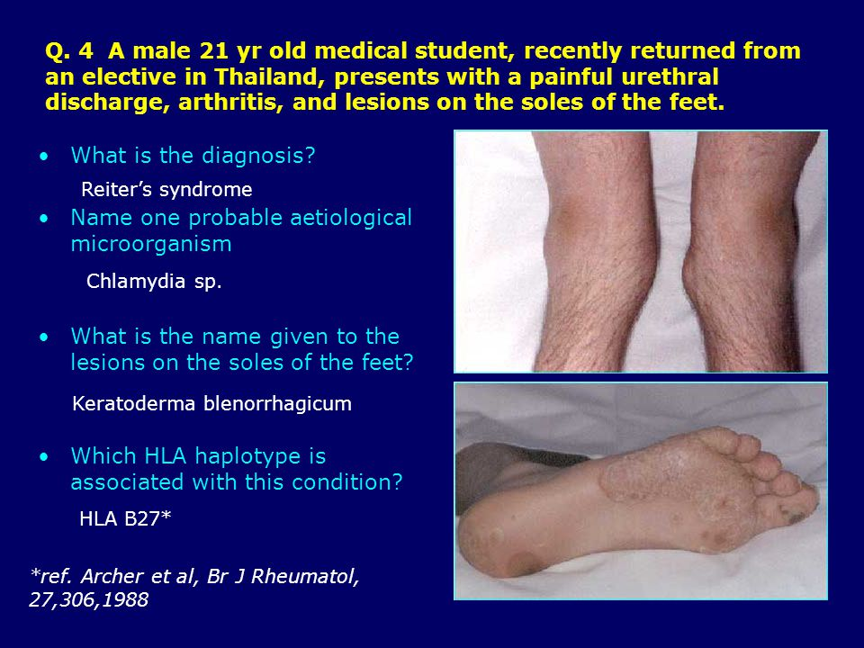 Q. 4 A male 21 yr old medical student, recently returned from an elective in Thailand, presents with a painful urethral discharge, arthritis, and lesi