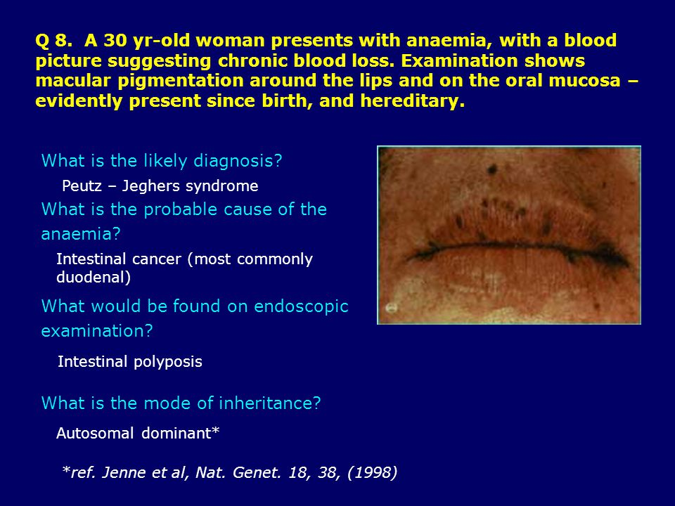 Q 8.A 30 yr-old woman presents with anaemia, with a blood picture suggesting chronic blood loss.