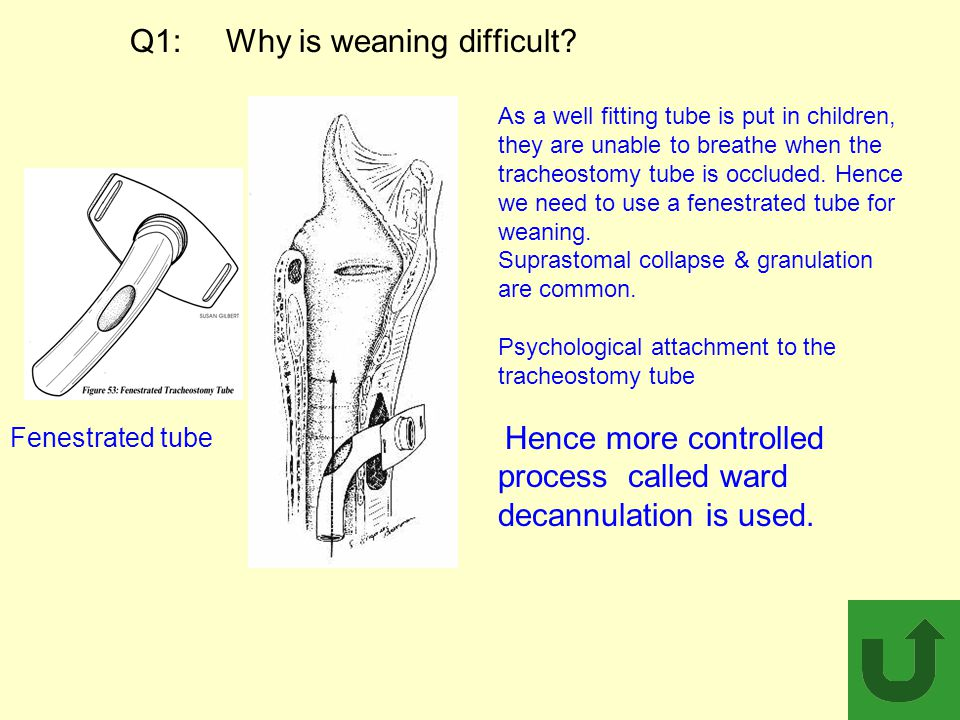 Q1: Why is weaning difficult? Fenestrated tube As a well fitting tube is put in children, they are unable to breathe when the tracheostomy tube is occ